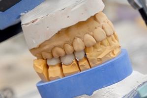 Unbeschwert Lachen mit Ihrem individuell passenden Zahnersatz